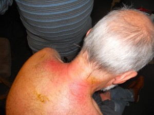 gua sha and acupuncture