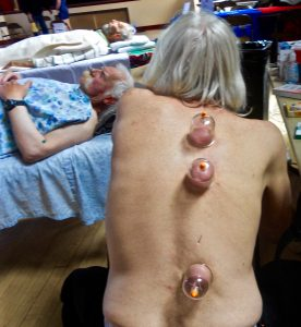 TCM Cupping Therapy and Acupuncture for back pain